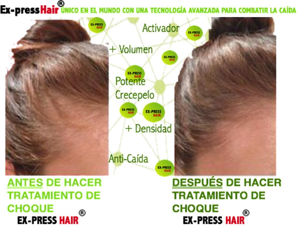 EX-PRESS HAIR TRATAMIENTO ANTICAÍDA Y CRECIMIENTO CAPILAR 1 MES *30 Cápsulas*
